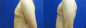 gynecomastia-before-after-photo-11-4
