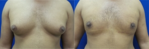 gynecomastia-before-after-photo-13-1