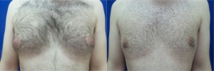 gynecomastia-before-after-photo-15-1