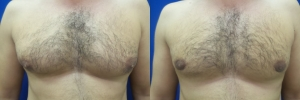gynecomastia-before-after-photo-16-1