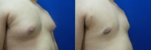 gynecomastia-before-after-photo-17-2