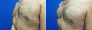 gynecomastia-before-after-photo-18-2