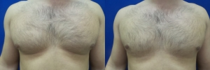 gynecomastia-before-after-photo-19-1
