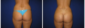 buttockimplantsliposuction20