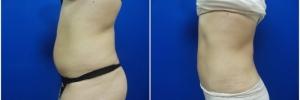 liposuction-5-2