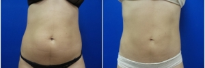 liposuction-5-3