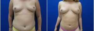 liposuction-6-1