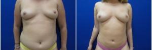 liposuction-6-1