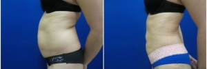 liposuction-7-1