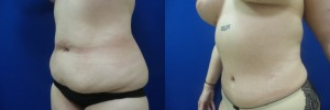 liposuction-abdominoplasty-before-after-photo-21-1