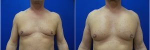 pec-implants-1