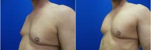pec-implants-2