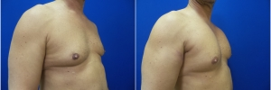 pec-implants-3