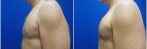 pec-implants-5-1