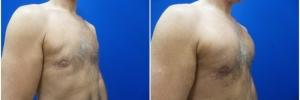 pec-implants-5-2