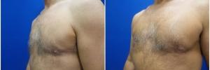 pec-implants-5-3