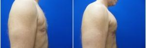 pec-implants-5-4