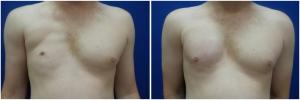 pec-implants-7-1