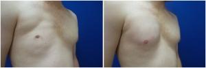 pec-implants-7-3