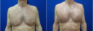 pec-implants1-1