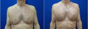 pec-implants1-1