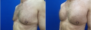 pec-implants1-2