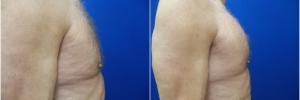 pec-implants1-3