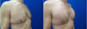 pec-implants1-4