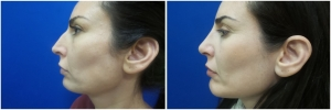 rhinoplasty-before-after-photo-12-1
