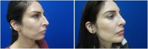 rhinoplasty-before-after-photo-12-2