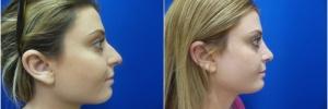female-rhinoplasty1-2