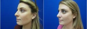 female-rhinoplasty1-3