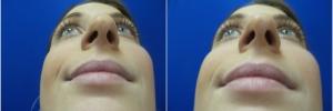 female-rhinoplasty1-4