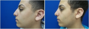 rhinoplasty-before-after-photo-11-1