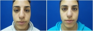 rhinoplasty-before-after-photo-11-2
