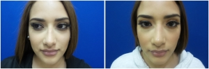 rhinoplasty-before-after-photo-13-1