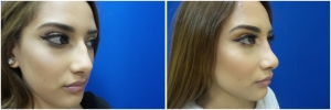 rhinoplasty-before-after-photo-13-5