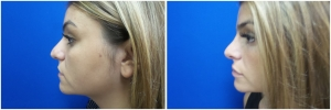 rhinoplasty-before-after-photo-4-1