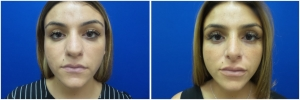rhinoplasty-before-after-photo-4-2