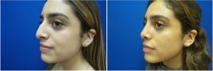 rhinoplasty-before-after-photo-5-1