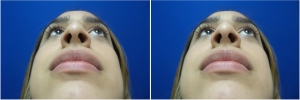 rhinoplasty-before-after-photo-5-2