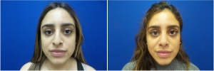 rhinoplasty-before-after-photo-5-3