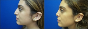 rhinoplasty-before-after-photo-5-4