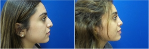 rhinoplasty-before-after-photo-5-5