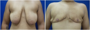 top-surgery-female-to-male-4-1