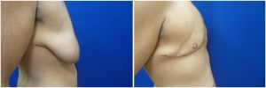top-surgery-female-to-male-4-3